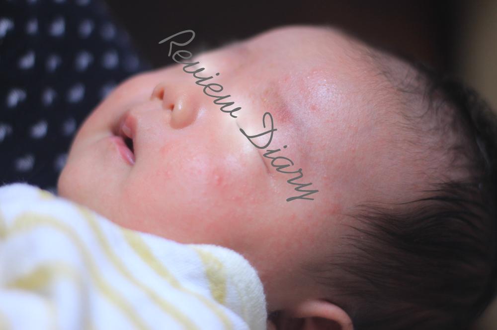 顔 ブツブツ 赤ちゃん